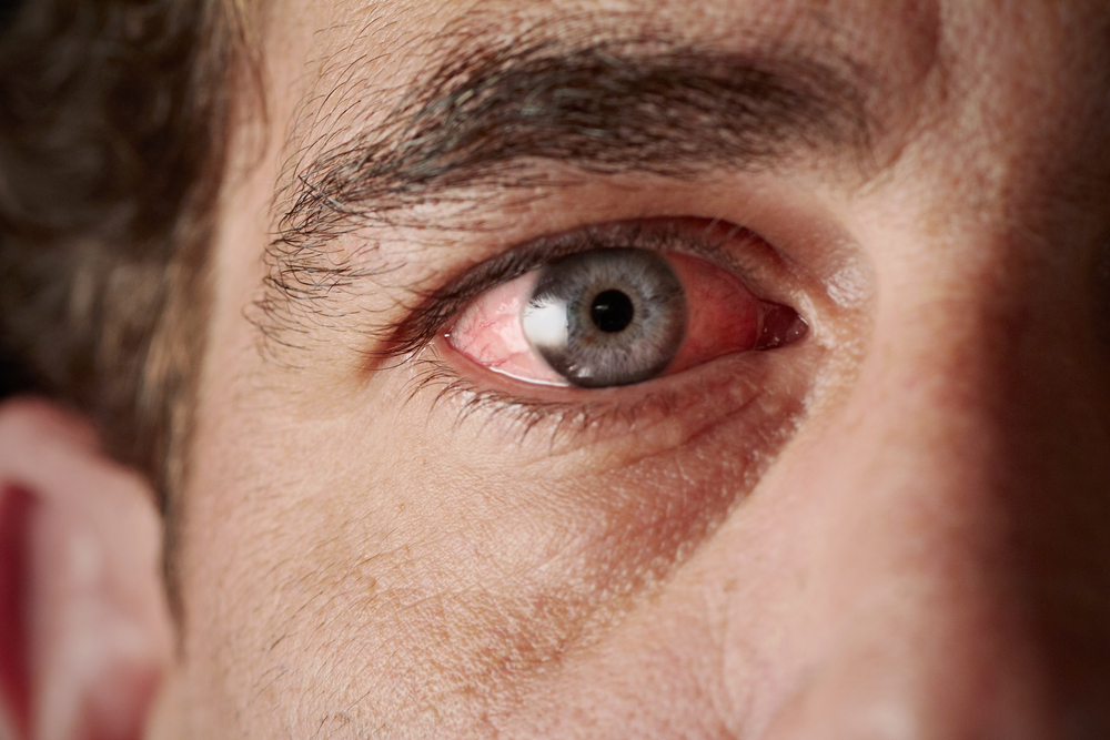 Pink Eye What You Should Know First Eye Care DFW Keller