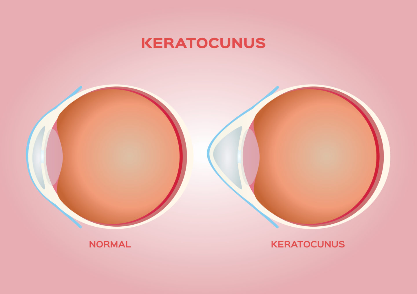 Keratoconus Treatment Options - First Eye Care DFW